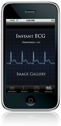 Instant ECG - Image Gallery